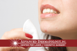 ACNE : Common causes, prevention, and available treatment options including lasers.