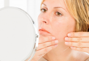 ZAPPING ZITS: Expert Discusses Non-Medication Treatments for Acne