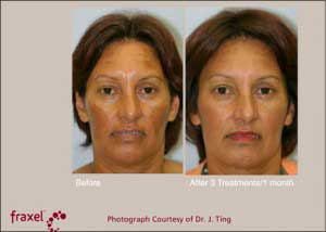preventing Melasma before and after photos