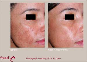 Can I prevent Melasma before and after photos