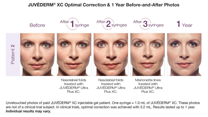 Juvederm XC Optimal Correction and 1 Year Before-and-After Photos