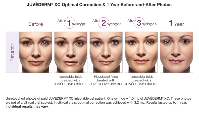 Juvederm XC Optimal Correction and 1 Year Before and After Photos