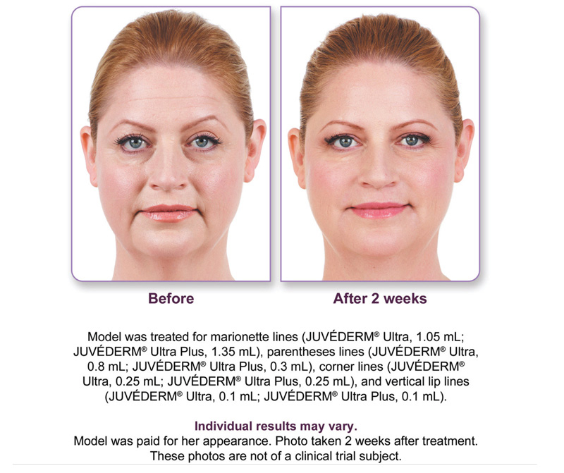 Juvederm XC Before and After Photos: Female before/after 2 week