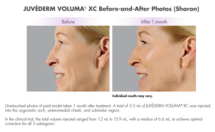 Juvederm Voluma XC Before and After Photos (Sharon)