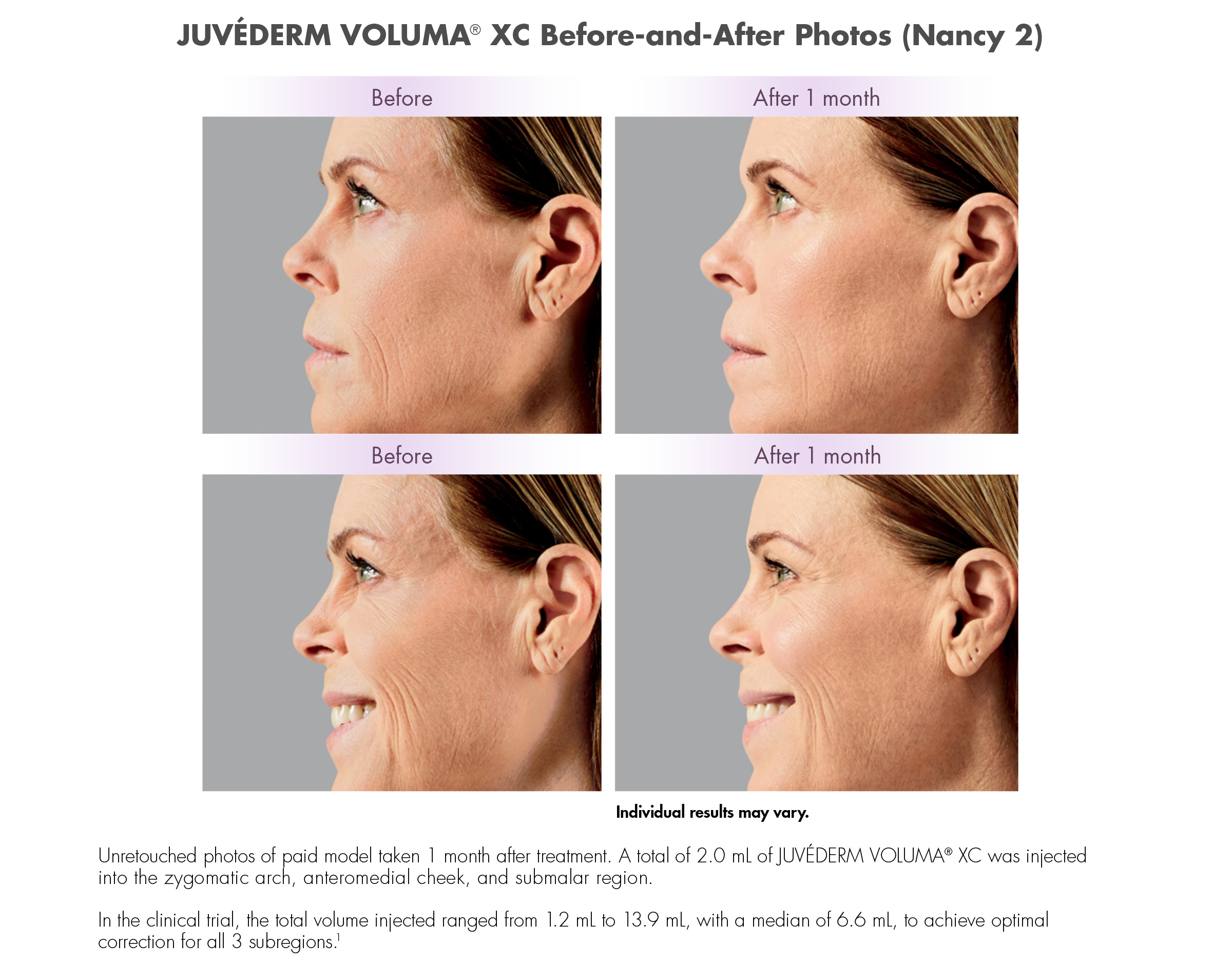 Juvederm Voluma XC Before and After Photos (Nancy)