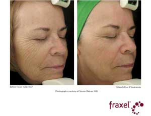 Fraxel Friendly Before and After Photo: Female - right side, oblique view