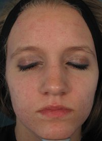 Photo: Acne After Acleara Treatment - female, frontal view