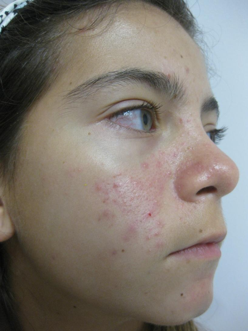 Acleara Acne Therapy Queens Long Island Nyc