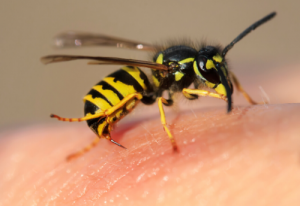Getting Stung and When to Seek Help