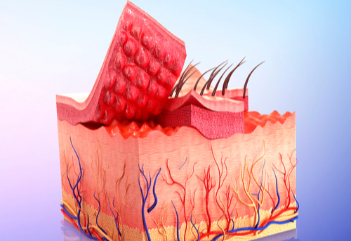 Patch Treatment for Basal Cell Carcinoma?