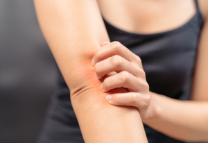 Decoding the Mystery Behind Eczema's Itch: One Step Closer