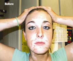 VITILIGO - Before Photo: Female - face, frontal view