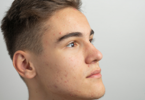 Teen Acne: How to Choose the Best Treatment