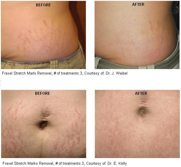 SFraxel Stretch Marks Removal - Before and After Photos