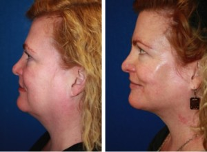 Thermi - before and after photos - woman, left side view