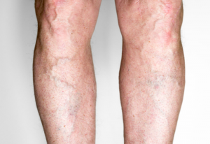 New Treatment Options Put An End to Visible Leg Veins
