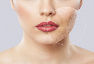 Higher Doses of Isotretinoin Reduce Acne Recurrence