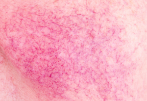 Negative first impressions for rosacea sufferers
