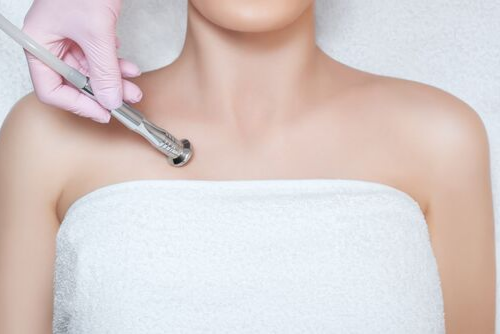 New Treatment Area Approved for Ultherapy