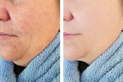Is the Redness on Your Face Rosacea?