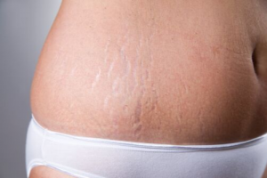 Laser Treatments for Stretch Marks