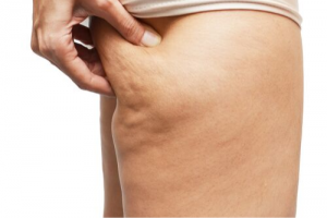 Unsightly Cellulite: What Is It and What Can Be Done?