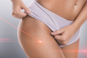 Dr. Smart on Treating Stretch Marks