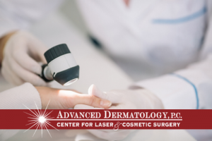 Jie Chen, Physician Assistant – Patient Experience at Advanced Dermatology, P.C.