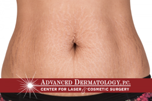 Dr. Fox Interviewed About Innovative Stretch Mark Treatment