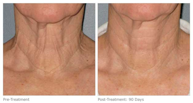 Ultherapy treatment for the neck