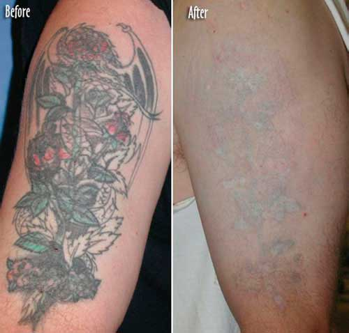 Laser tattoo removal with a color tattoo