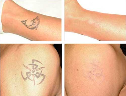 Results of laser tattoo removal on black tattoos.