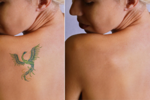 Which Tattoo Colors can be Effectively Removed?