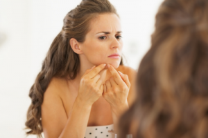 What to Do When Adult Acne Strikes