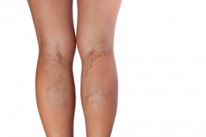 7 Things You Need to Know About Leg Veins