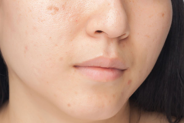 adult face acne photo