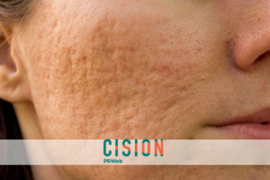 Leaving the Physical and Psychological Battle Scars of Acne Behind