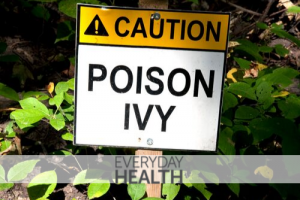 8 Tips for Getting Rid of Poison Ivy on Your Property