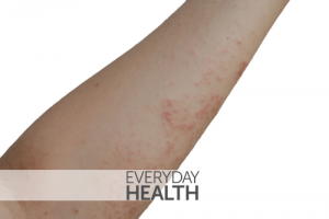 10 Common Questions About Impetigo, Answered