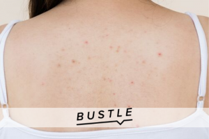 7 Unexpected Things Having Acne On Your Back Says About Your Health Habits