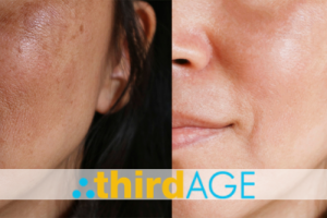 3 Key Facts and Myths About Melasma