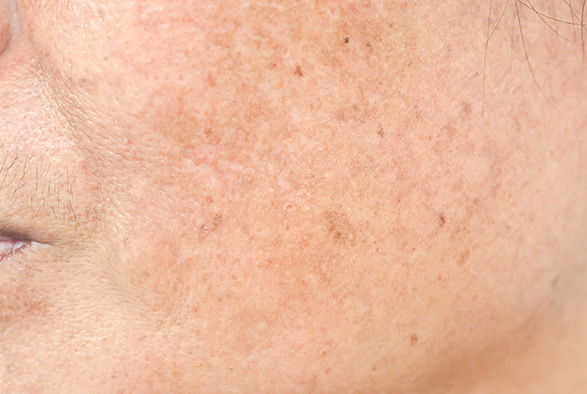 Erbium Laser Skin Resurfacing Service Photo1