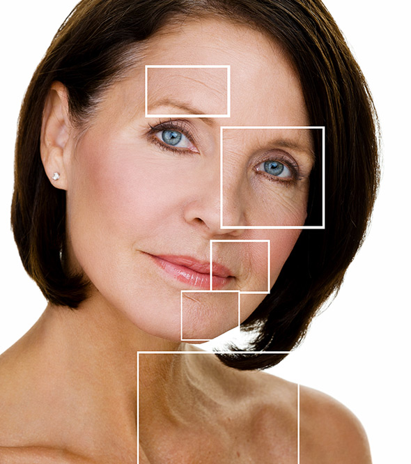 Erbium Laser Skin Resurfacing Service Photo2