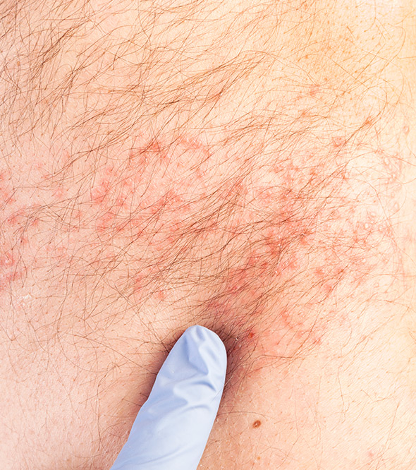 When Should You See An Allergist? Service Photo2
