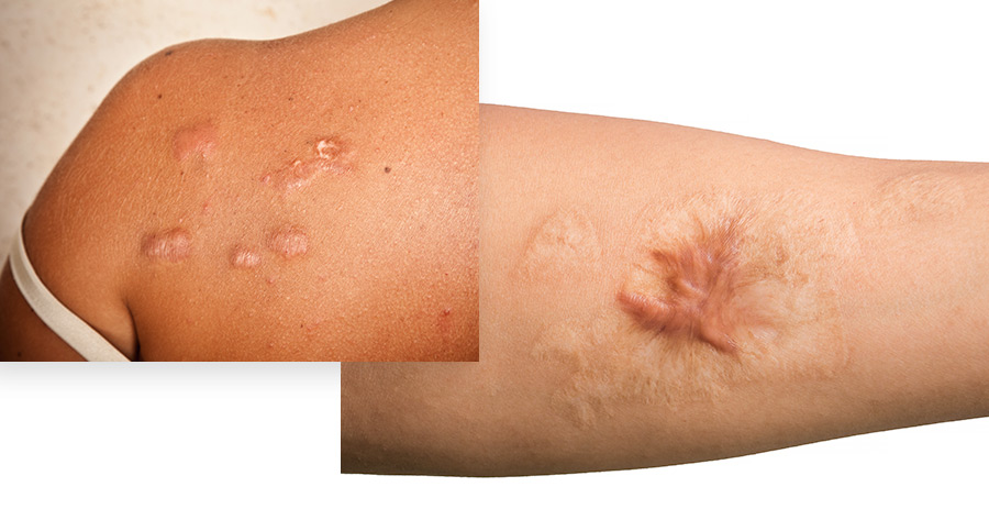 Scar Removal Service Photo1