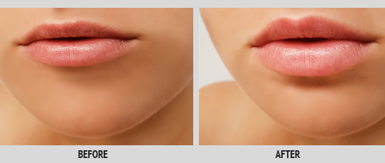 Lip Rejuvenation Service Photo2