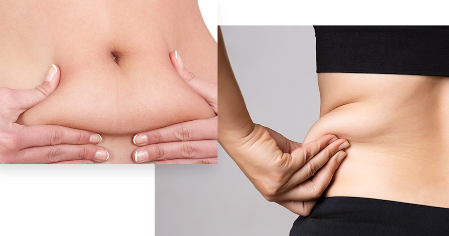 CoolSculpting, Lose Weight Fast | Long Island, NY