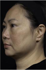 Thermage patient before photo