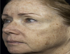Aging Skin patient before photo