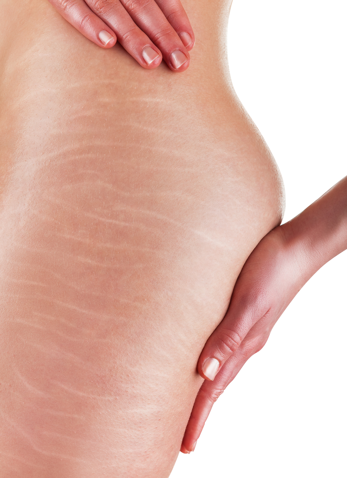 Stretch Marks Service Photo5